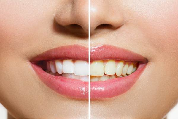 diş beyazlatmanın yolları